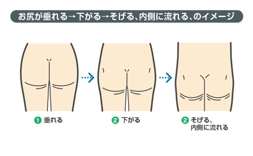 お尻が垂れる→下がる→そげる、内側に流れる、のイメージ