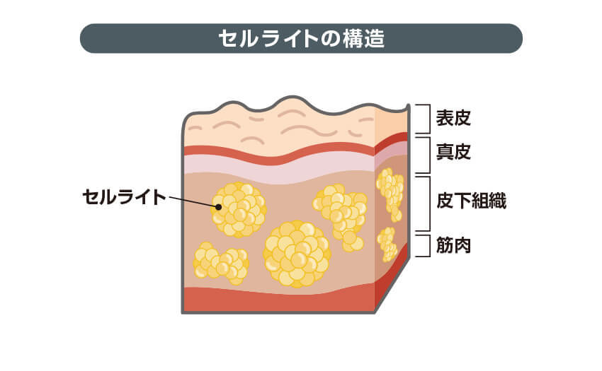 セルライトの構造
