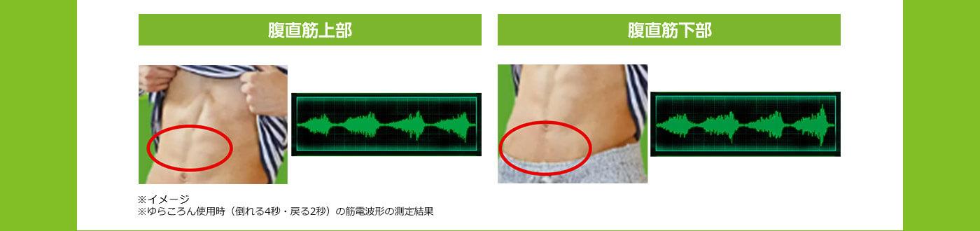 腹直筋上部 腹直筋下部 ※イメージ ※ゆらころん使用時(倒れる4秒・戻る2秒)の筋電波形の測定結果