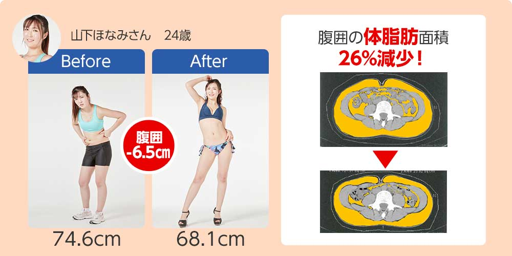 山下ほなみさん 24歳 腹囲の体脂肪面積26%減少!