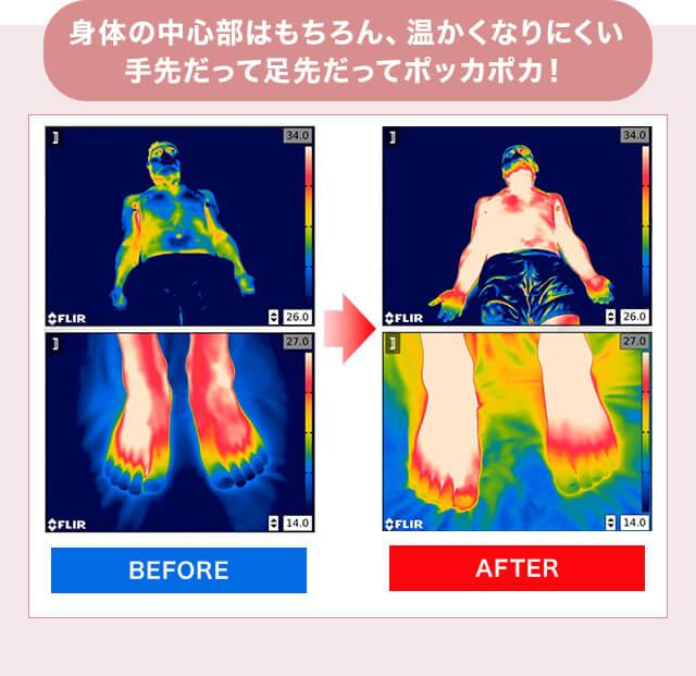 身体の中心部はもちろん、温かくなりにくい手先だって足先だってポッカポカ! BEFORE AFTER