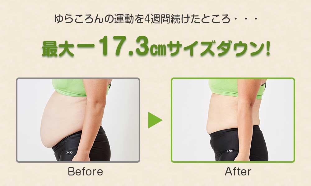 ゆらころんの運動を4週間続けたところ・・・ 最大-17.3cmサイズダウン! Before After