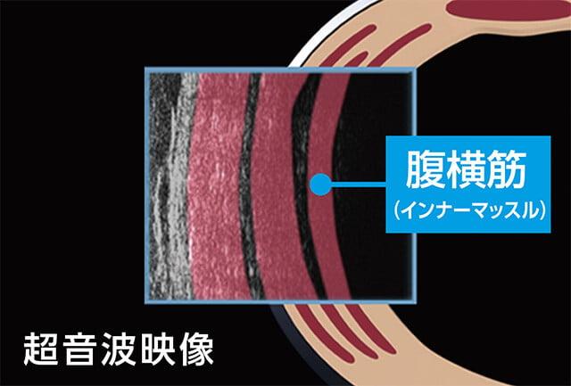 超音波映像